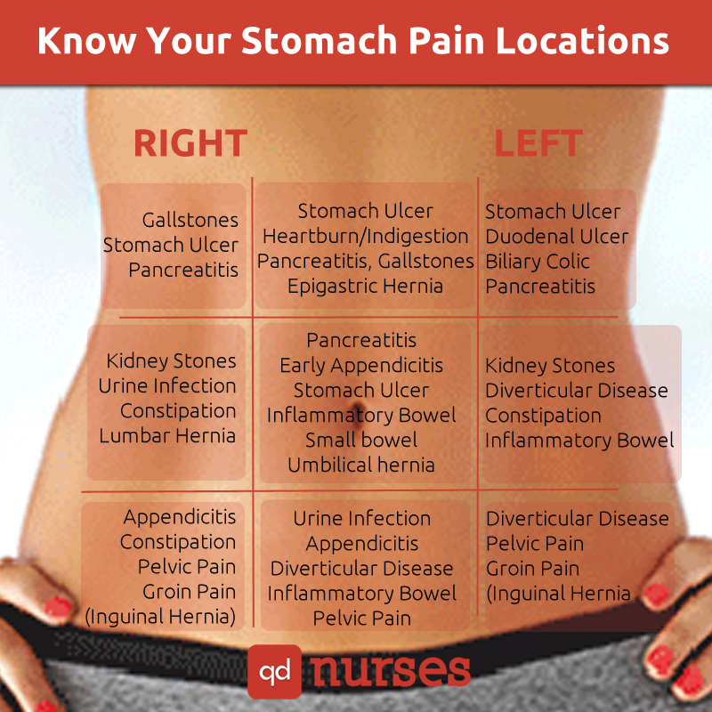 Stomach pain locations chart for the nclex qd nurses